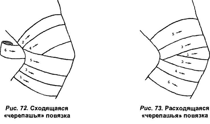 Повязка Спиральная