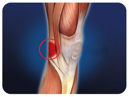 болит во внутренней части колена