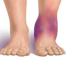 Надорванная связка голеностопного сустава тренажеры для коленного сустава