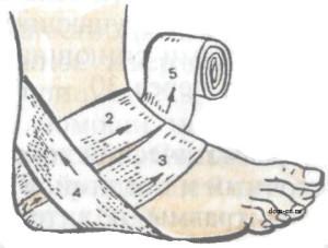 Накладываем повязки