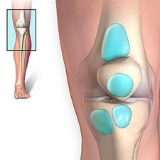 остеофиты коленного сустава лечение форум