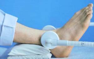 Почему возникает артрит голеностопа