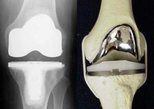 Что такое менископатия коленного сустава