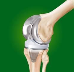 Как лечить хронический синовит колена