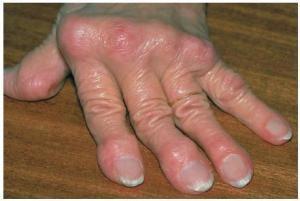 Какое лекарство помогает при ревматоидном артрите
