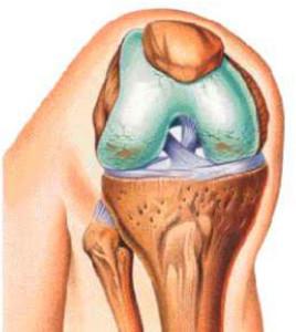 Виды ЛФК для укрепления суставов