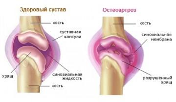 Что такое остеоартроз?
