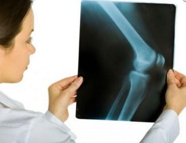 Лечение остеоартроза