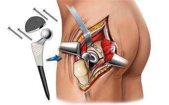 Эндопротезирование тазобедренного сустава и реабилитация