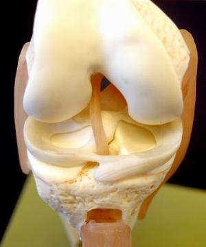 Восстановления хряща коленного сустава
