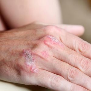 Проявление хламидийного артрита