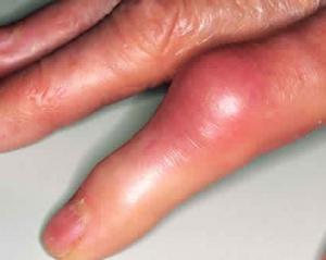 Здоровая пища при артрите и подагре