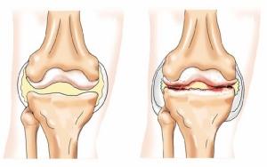 Почему может развиться артрит коленного сустава