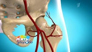 Почему нерв в тазу может защемиться