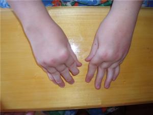 Причины заболевания реактивного артрита у ребенка