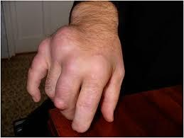 Чем питаться при артрите