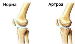 Артрит коленного сустава характеристика болезни