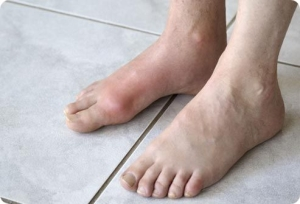 Боль при подагре ног