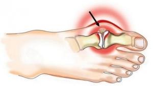 Почему развивается подагрический артрит на ноге