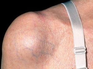 Разрыв сухожилия плечевого сустава — симптомы травмы, степени ...