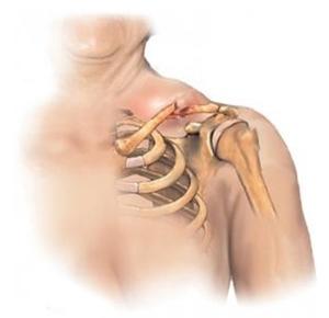 Признаки тендиноза плеча