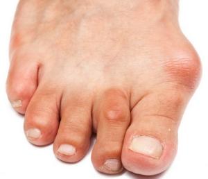 Что такое бурсит большого пальца стопы