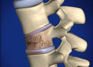 Остеопороз позвоночника — течение и лечение заболевания