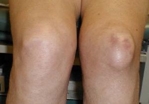 Бурсит коленного сустава и его предотвращение