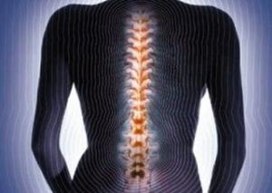 Поражение позвонков остеопорозом