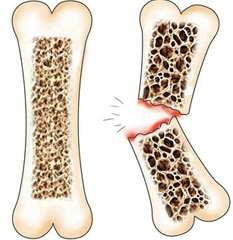 В чем опасность остеопороза
