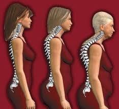 Что такое сенильный остеопороз и его характерные признаки