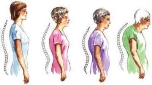 Признаки развития диффузного остеопороза