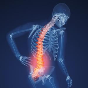Признаки указывающие на остеопороз тазобедренного сустава