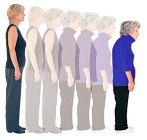 Признаки запущенного остеопороза у женщин