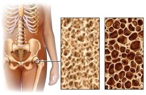 Часто ли женщины страдают от остеопороза