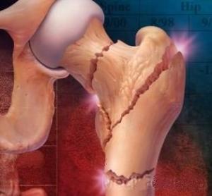 Отличия системной формы остеопороза