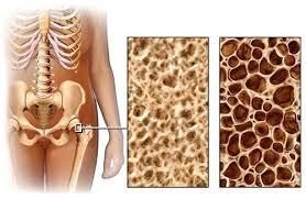 Почему развивается остеопороз и как этого избежать