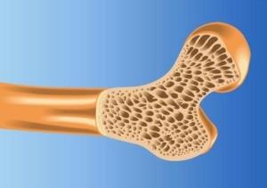 Обнаружение остеопороза и его диагностика