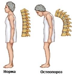 Как и чем лучше лечить остеопороз