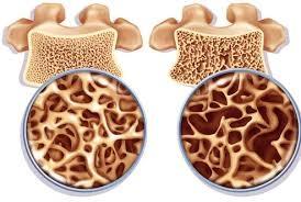 Как лечить остеопороз упражнениями