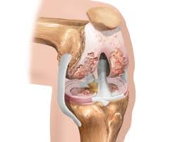 Остеопороз и его влияние на коленный сустав