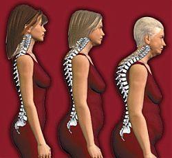 Причины развития остеопороза поясничного отдела
