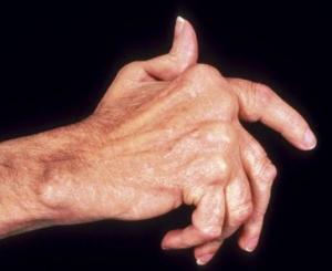 Что происходит с пальцами при полиартрите