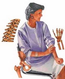 Как классифицируют остеопороз