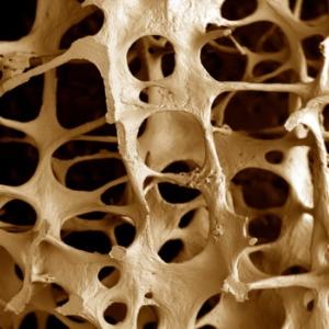 Костная масса при остеопорозе