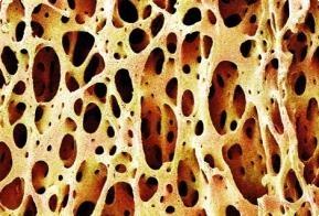 Что такое остеокальцин