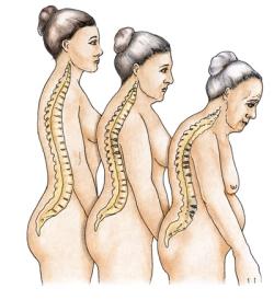 Почему развивается остеопороз