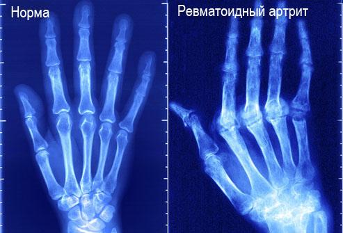 Проведение рентгена при артрите