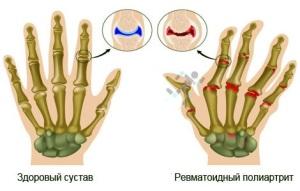 simptomatika-revmatoidnogo-poliartrita