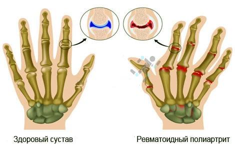 Симптоматика ревматоидного полиартрит